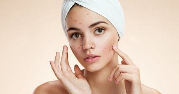 acne-outbreaks-avoid-these-5-common-causes