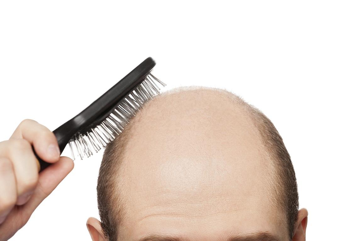 Действенные рецепты против выпадения волос